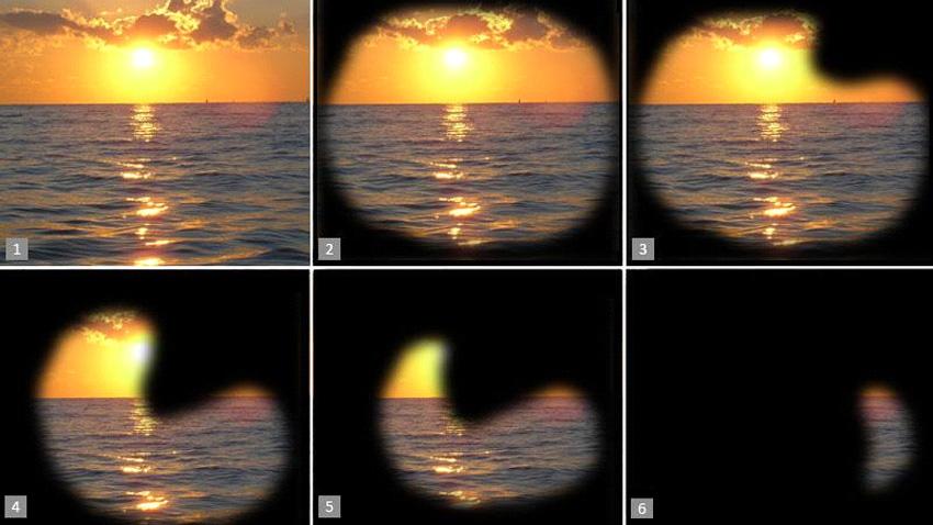 Изменение на зрението при глаукома