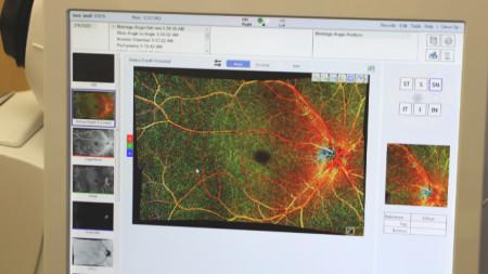 Клиниката по очни болести към ВМА разполага с последно поколение оптичен кохерентен томограф.