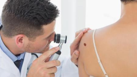 Преглед за рак на кожата
